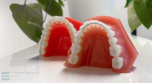 orthodontist kinderen