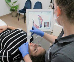 orthodontist werkwijze stap 2