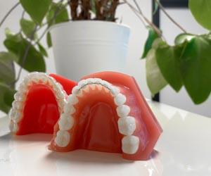 orthodontist werkwijze stap 5